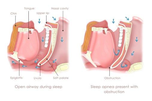 What is sleep apnea? The major disorder affecting millions